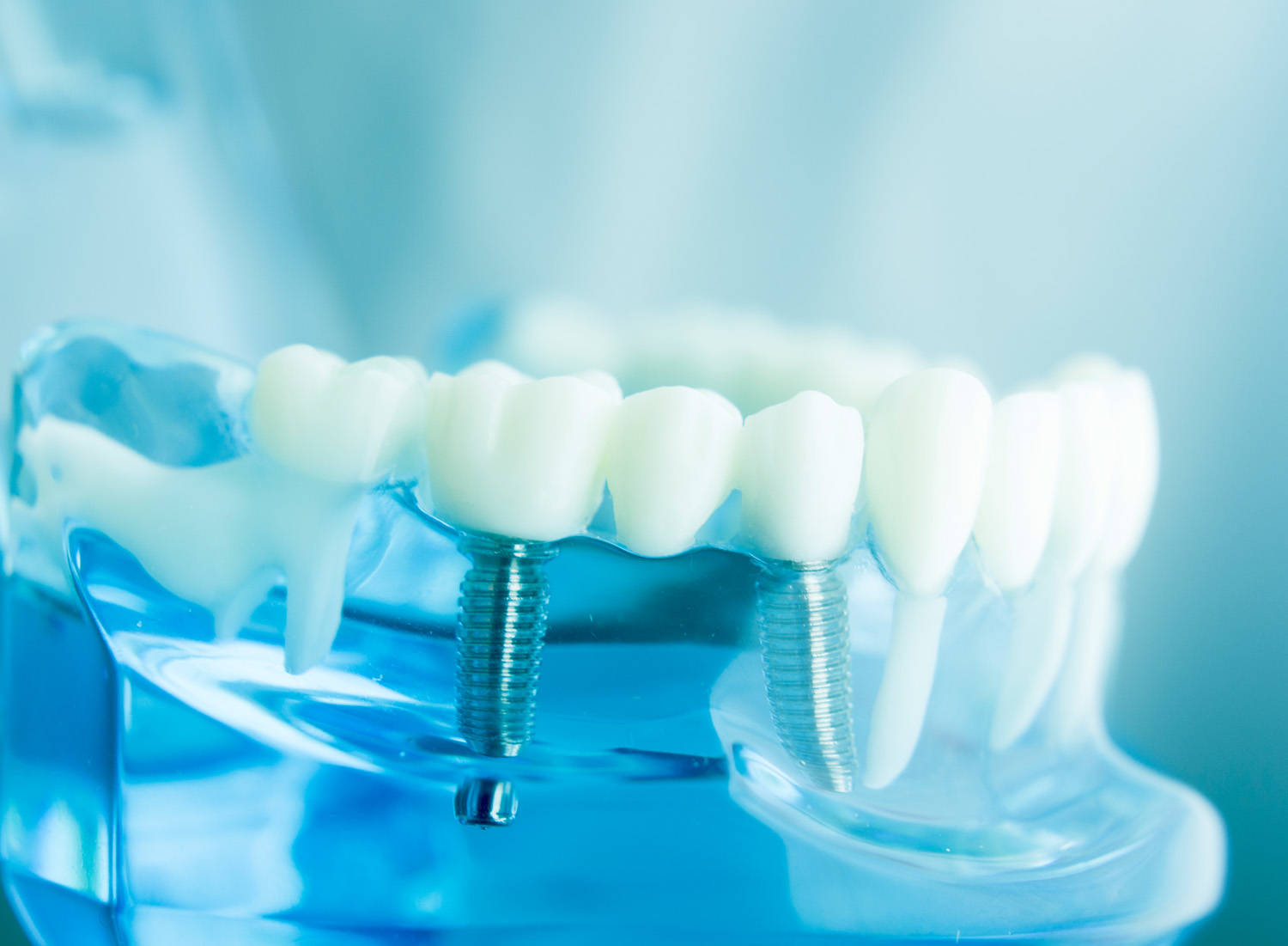 the dental care clinic dental implants