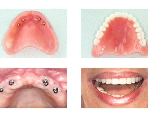 the dental care clinic impant dentures